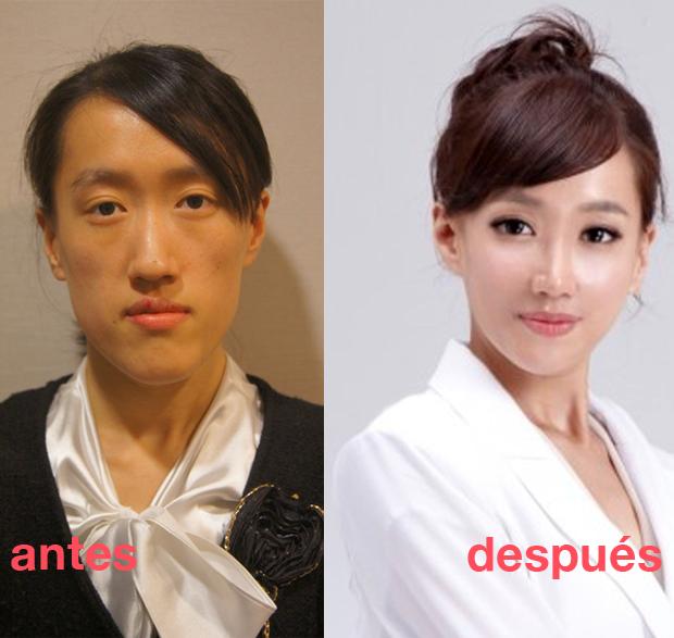 Especial lo más leido en la historia de JaponPop.com: Este es el caso que ha consolidado a Corea como potencia mundial en cirugia estética